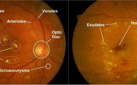 retinal-anatomical-structure